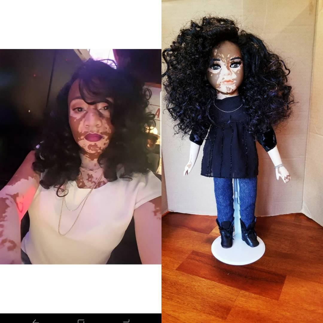 Artista americana cria bonecas com vitiligo para inclusão infantil 16