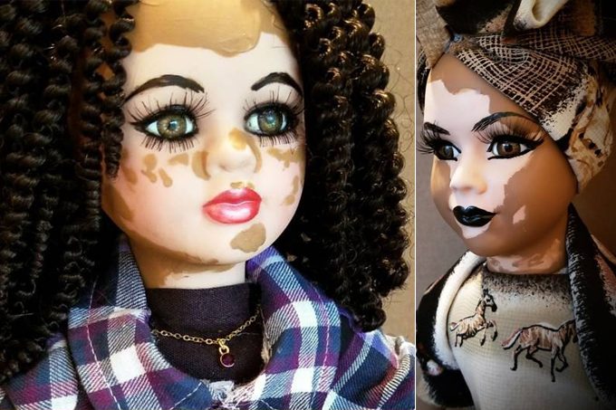 Artista americana cria bonecas com vitiligo para inclusão infantil 13
