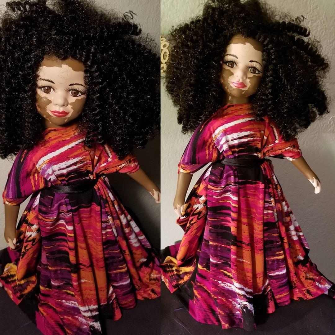 Artista americana cria bonecas com vitiligo para inclusão infantil 17